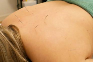 Cupping behandeling bij Shuxin massage en acupunctuur praktijk in Haarlem