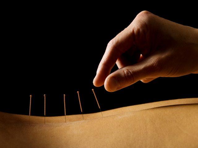 acupunctuur en massage haarlem