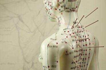 Shuxin Acupunctuur behandeling en meest voorkomende klachten