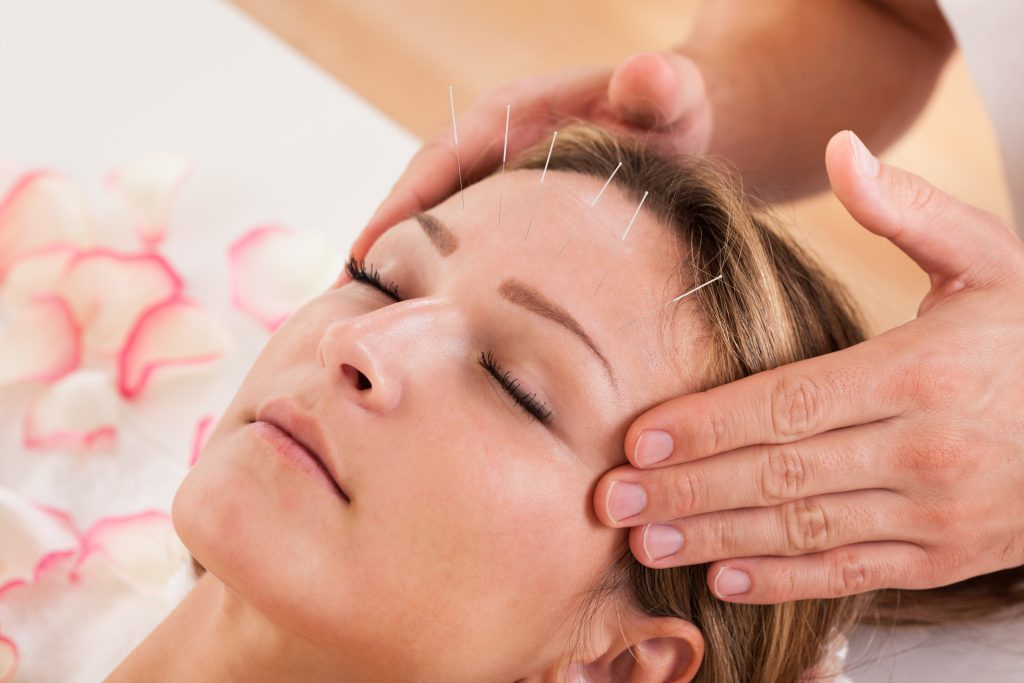Massage & Acupunctuur Haarlem